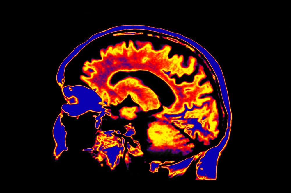 Musin on the Brain