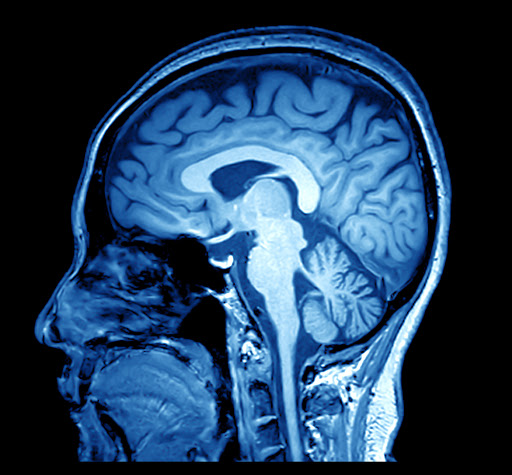 MRI-image-of-the-human-brain